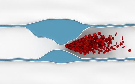 blocking: Atherosclerosis disease - plague blocking blood flow Stock Photo