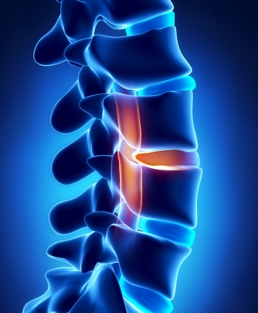 intervertebral disc: Herniated disc with pressure on spinal cord