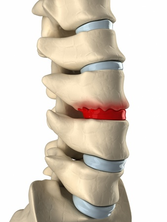 intervertebral disc: Disc degenarated by osteophyte formation