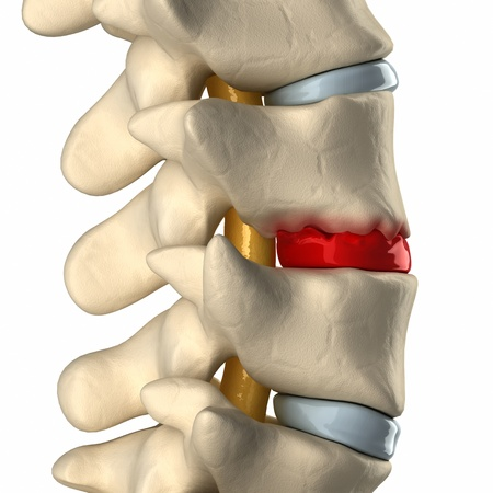 intervertebral disc: Disc degeneration by osteophyte formation lateral view