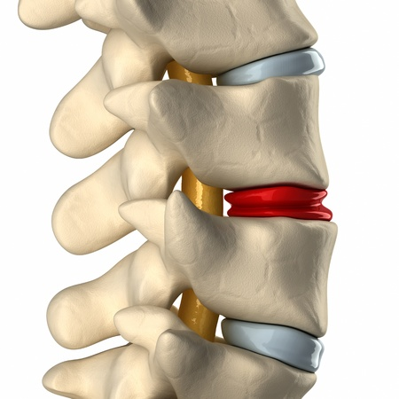 intervertebral disc: Degenerated disc in spine