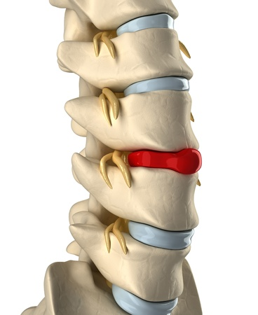 intervertebral: Disc ruptured with veretebras