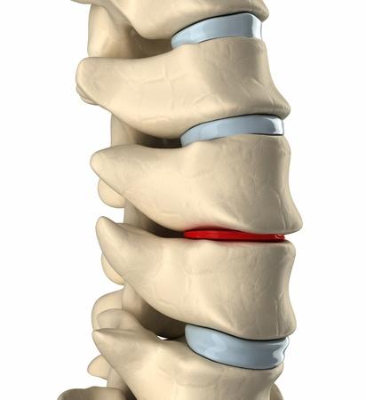columna vertebral: Adelgazamiento deformaci�n disco Foto de archivo