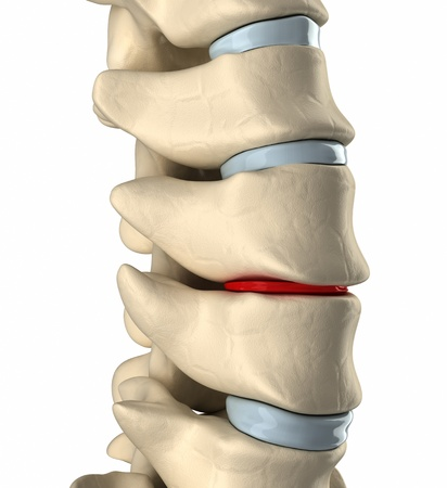 intervertebral: Thinning disc deformation