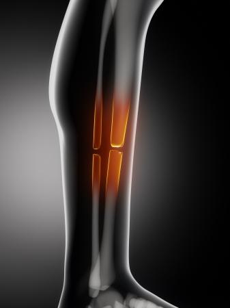 broken knee: Broken leg