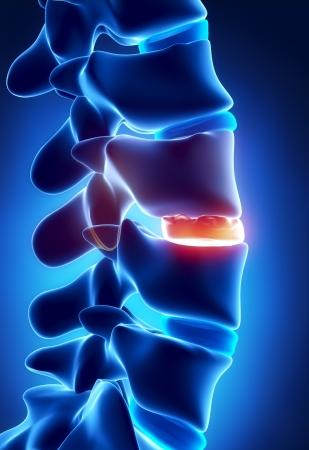 medula espinal: Disco degenarated por la formación de osteofitos