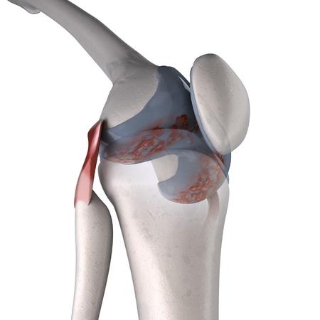knee cap: arthritis of knee