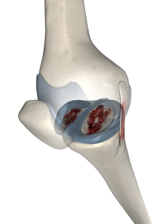 Painful knee arthritis photo