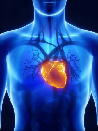 cardiac care: X-ray cardiovascular system Stock Photo
