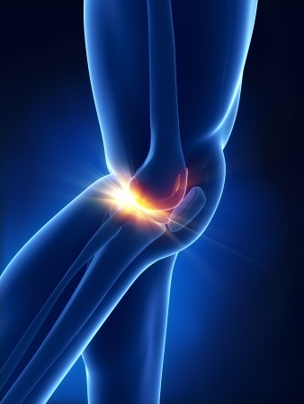 knee joint: Painful knee concept