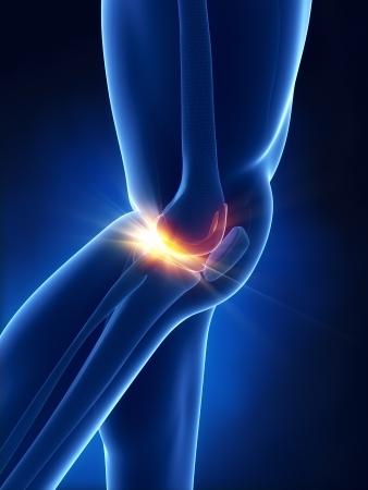 Schmerzhafte Knie-Konzept Standard-Bild