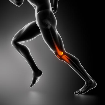 sportmassage: Sport knieblessure x-ray begrip Stockfoto