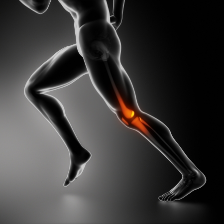 leg injury: Sports knee injury x-ray concept Stock Photo