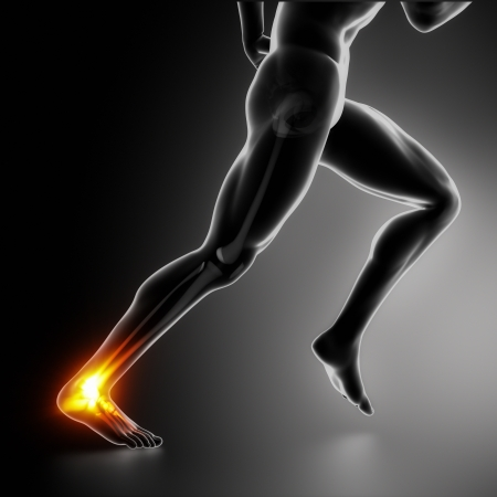 leg injury: Sports ankle and achilles heel injury concept