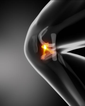 anterior: Anterior and posterior cruciate ligaments