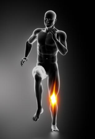 masaje deportivo: Dolor de rodilla Las lesiones de rodilla concepto Foto de archivo