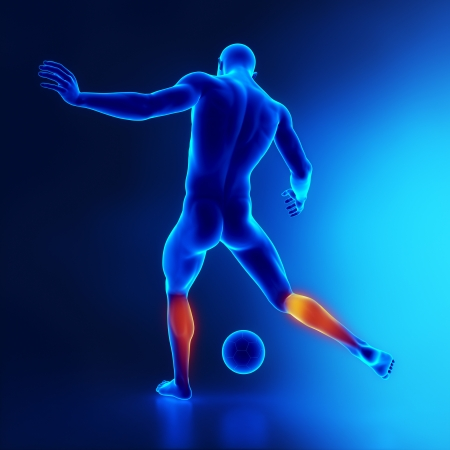 leg injury: Strained calf muscle concept in x-ray Stock Photo