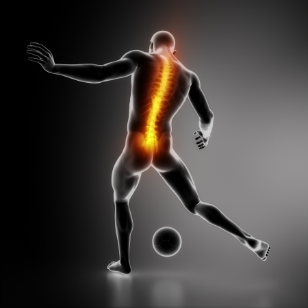 intervertebral disc: Sportsman backbone injury Stock Photo