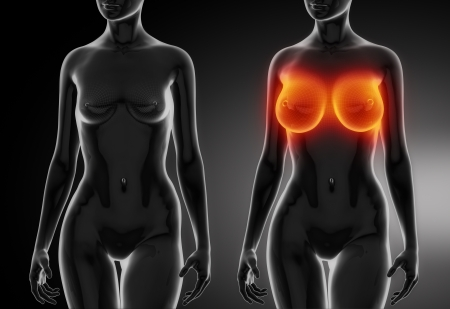 Female breast comparison with wireframe Stock Photo - 16586743