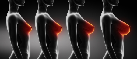mujer desnuda senos: Mama mujer de talla comparaci�n B, C, D, E Foto de archivo