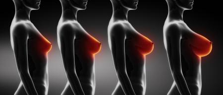 breasts girl: Woman breast size comparison B,C,D,E Stock Photo