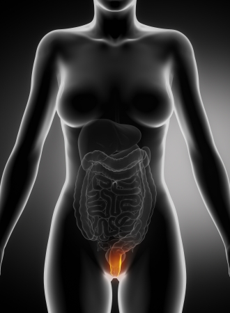 Female hemorrhoid concept Stock Photo - 17500601