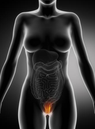 hemorrhoid: Female hemorrhoid concept