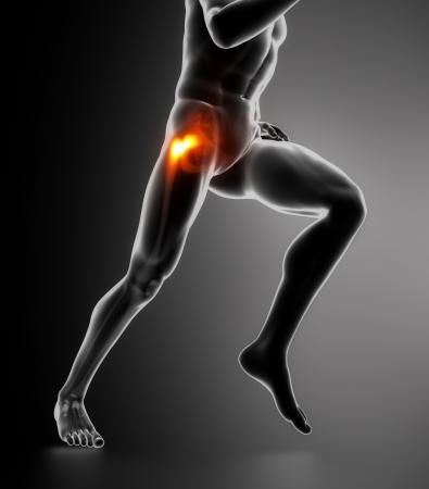 Hip problem concept photo