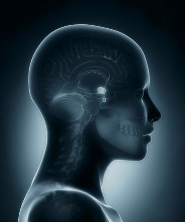 下垂体腺医療用 x 線スキャン