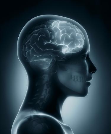 mente humana: L�bulo frontal m�dica de rayos x