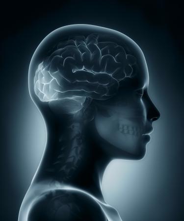 l�bulo: L�bulo occipital m�dico de rayos X de exploraci�n