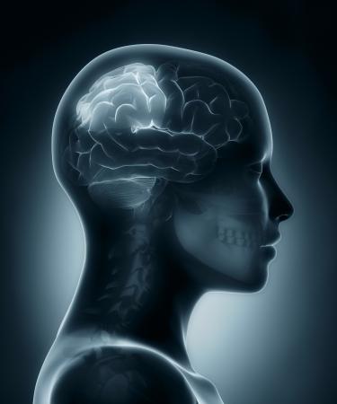 Parietal lobe medical x-ray scan