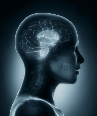 brain stem: Brain stem medical x-ray scan Stock Photo