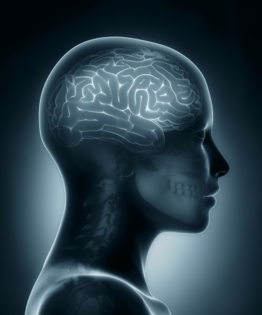 anatomy brain: Female brain medical x-ray scan Stock Photo