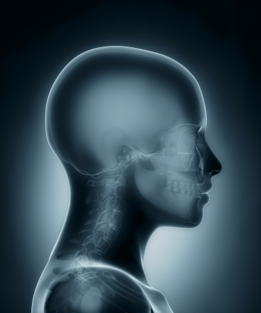 lateral: Skull medical x-ray scan Stock Photo