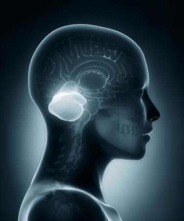 ventricles: Cerebellum medical x-ray scan Stock Photo