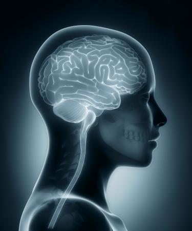 女性の脳医療用 x 線スキャン