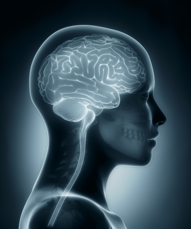 midbrain: Female brain medical x-ray scan Stock Photo