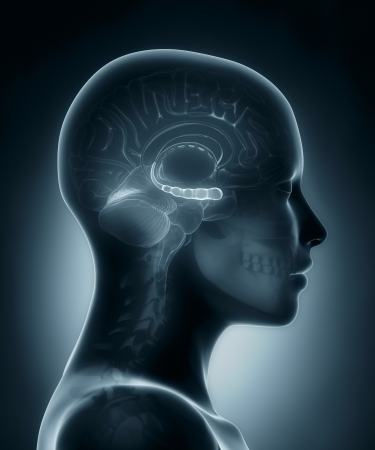 mri head: Hyppocampus medical x-ray scan