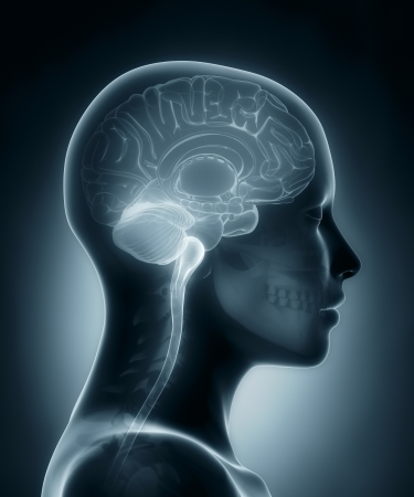 corpus: Female brain medical x-ray scan Stock Photo