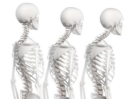 colonna vertebrale: Cifosi della colonna vertebrale in 3 fasi Archivio Fotografico
