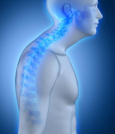 spina dorsale: Cifosi della colonna vertebrale vista laterale