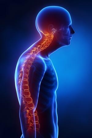 columna vertebral: Vista lateral en la columna cif�tica de rayos X