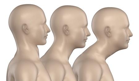 cervicales: Mujer con espalda redonda