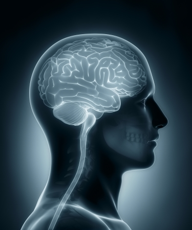 brainpan: Human brain medical x-ray scan Stock Photo