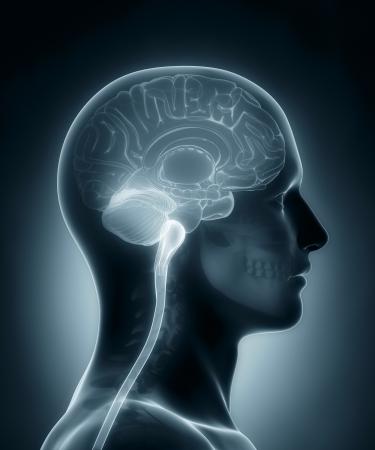 hipofisis: Cerebro humano Sección del médico de rayos X de exploración