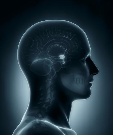 hipofisis: Gl�ndula pituitaria m�dico de rayos X de exploraci�n