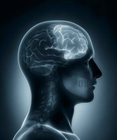 frontal lobe: Frontal lobe medical x-ray scan Stock Photo