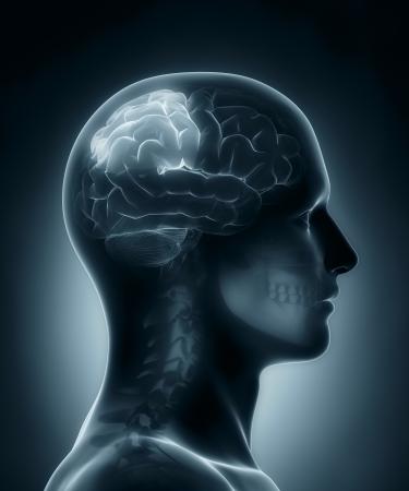 parietal: Parietal lobe medical x-ray scan