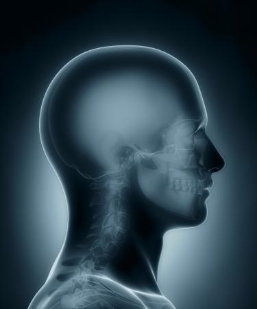 brainpan: Skull medical x-ray scan Stock Photo